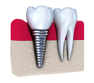 Dental Implants Fowlerville MI